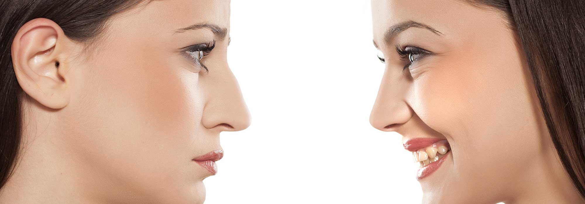 A before and after picture of a woman who received a rhinoplasty.